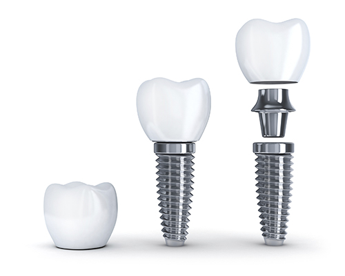 Dental Implants at Bella Dental Care