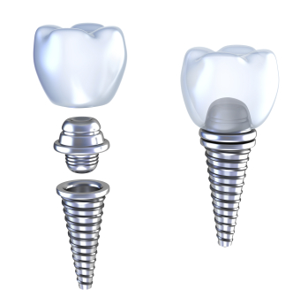 If your dental implant needs repair, Dr. Durflinger can help you with a dental implant restoration.